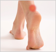 Cipro Heel Pain